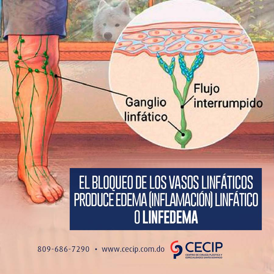 vaso linfático endurecido